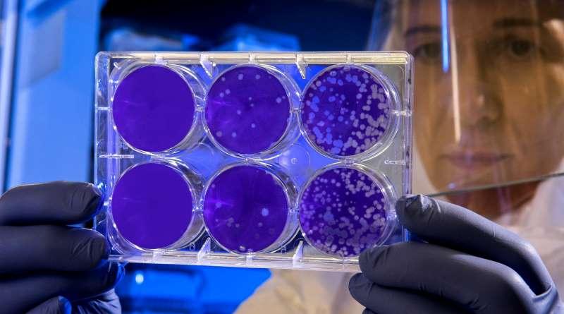 Virus Paling Berbahaya Saat ini, Ini yang Perlu Anda Ketahui tentang Varian Lambda Covid-19