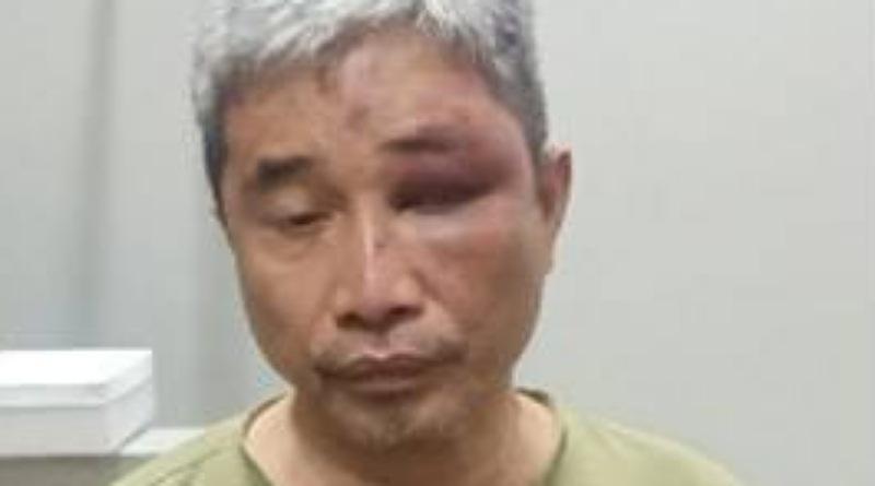 Hari ini Polisi Bakal Periksa Tujuh Saksi Terkait Penganiayaan M. Kece